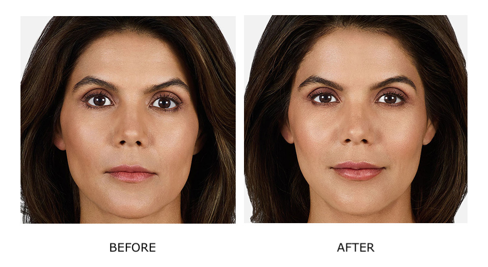 Before and after Juvéderm treatments